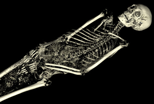 The CT scan of the mummy of an adult male (name unknown), showing his skeleton. © Trustees of the British Museum.