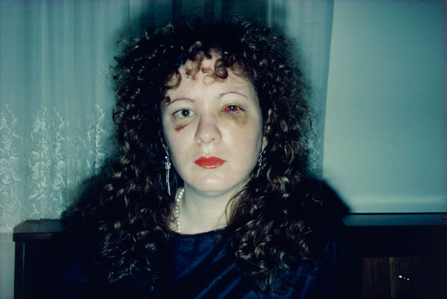 Nan Goldin. Nan One Month After Being Battered, 1984. Silver dye bleach print, printed 2008, 15 1/2 x 23 1/8 in (39.4 x 58.7 cm). The Museum of Modern Art, New York. Purchase. © 2016 Nan Goldin.