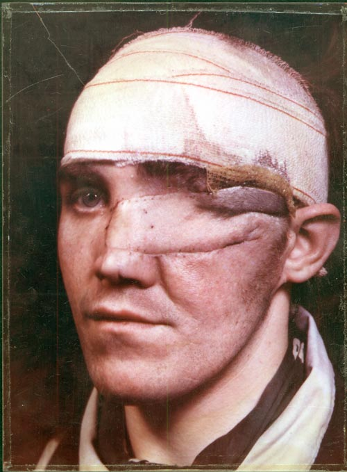 Percy Hennell. Probable shotgun wound of left eye which has been lost. Tissue has been replaced by a flap of skin from forehead or scalp, hence the bandage around the head where the flap was raised. Antony Wallace Archive, British Association of Plastic, Reconstructive and Aesthetic Surgery.